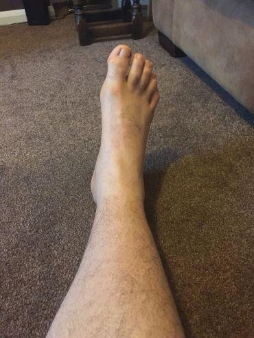 Foot June 17th 2017