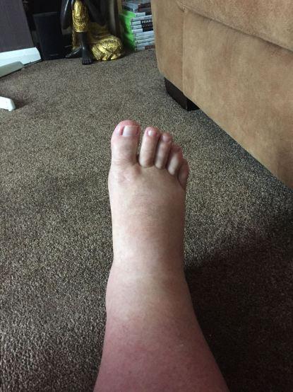 Foot Oct 15th 2014